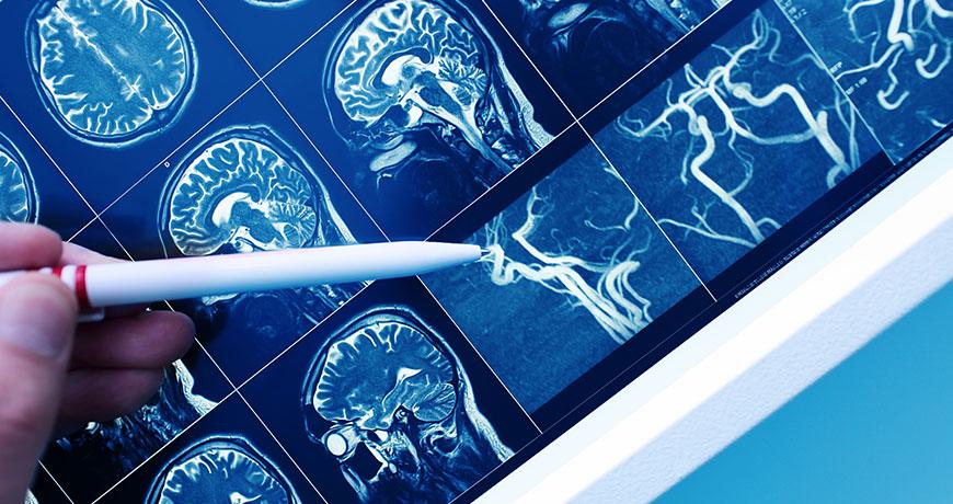 """Was ist eine gefäßbedingte (""""vaskuläre"""") Demenz?"""